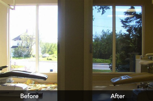 Before and After Film Window